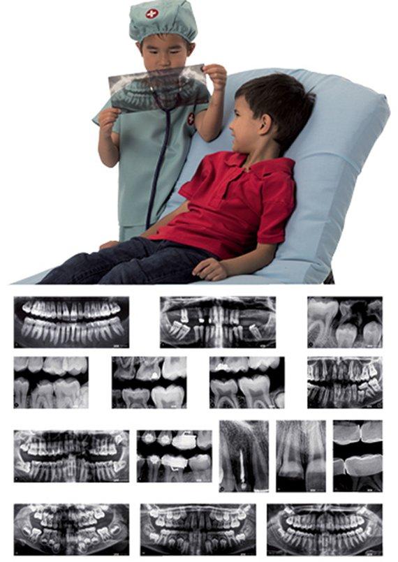 Röntgenbilder Zähne